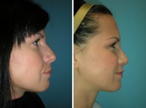 Nasenkorrektur Vorher - Nachher nach 6 Wochen