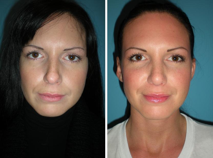 Vorher Nachher Nasenkorrektur | Dr. Michael