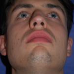 Nasenscheidewandverkrümmung