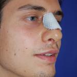 Patientenbegleitung Nasenkorrektur / 7. Tag nach der Operation