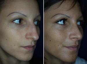 Nasenkorrektur Vorher - Nachher 4 Monate nach Höckerabtragung