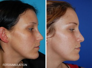 Nasenkorrektur - Fotosimulation und Ergebnis