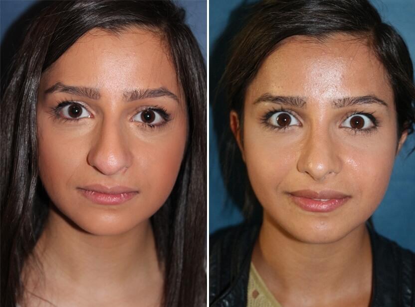 Nasenkorrektur Vorher - Nachher | Nasenchirurige Dr