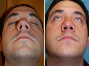 Nasenkorrektur Vorher - Nachher nach ca. 8 Wochen offener Nasenkorrektur
