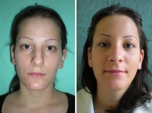 Nasenkorrektur Vorher - Nachher nach 2 Monaten