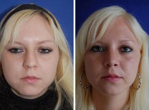Nasenkorrektur Vorher - Nachher / Nach 4 Monaten