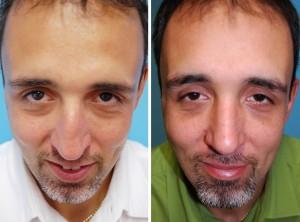 Nasenkorrektur Vorher - Nachher nach ca. 6 Wochen