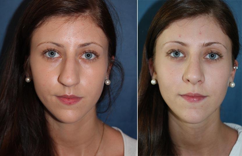 Nasenkorrektur Vorher - Nachher   Nasenchirurige Dr