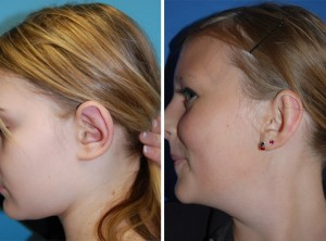 Ohrenkorrektur Vorher - Nachher / Seitenansicht