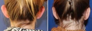 Ohrenkorrektur Vorher - Nachher / Rückansicht
