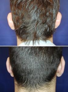 Ohrenkorrektur Vorher - Nachher / 2 Monate nach einer Ohranlegeplastik