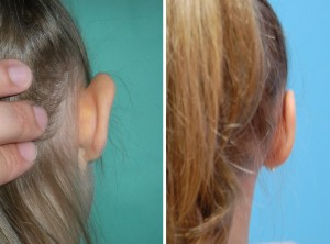 Ohrenkorrektur Vorher - Nachher / Rückansicht Diamantfeile