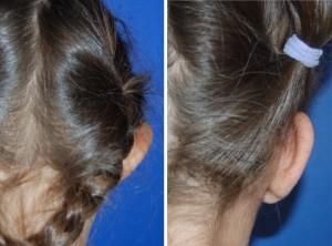 Ohrenkorrektur Vorher - Nachher nach 2 Monaten / Rückansicht