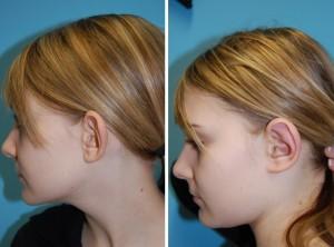 Ohrenkorrektur Vorher - Nachher / Nach 3 Monaten