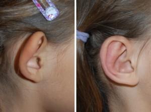 Ohrenkorrektur Vorher - Nachher nach 2 Monaten / Seitenansicht
