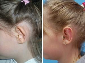 Ohrenkorrektur Vorher - Nachher / Seitenansicht Diamantfeile