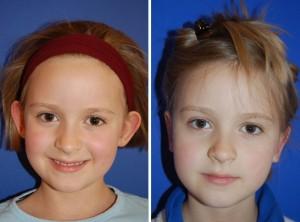 Ohrenkorrektur Vorher - Nachher / Voransicht