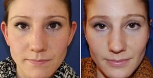 Ohrenkorrektur Vorher - Nachher nach 2 Monaten / Vorderseite