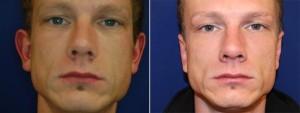 Ohrenkorrektur Vorher - Nachher / Vorderseite