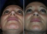 Nasenkorrektur Vorher - Nachher
